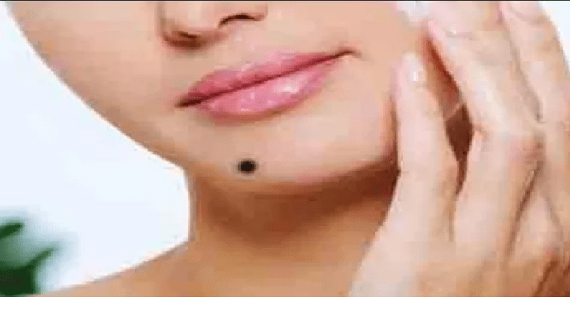 What Do The Moles On Your Body Say About Your Personality? - pepNewz